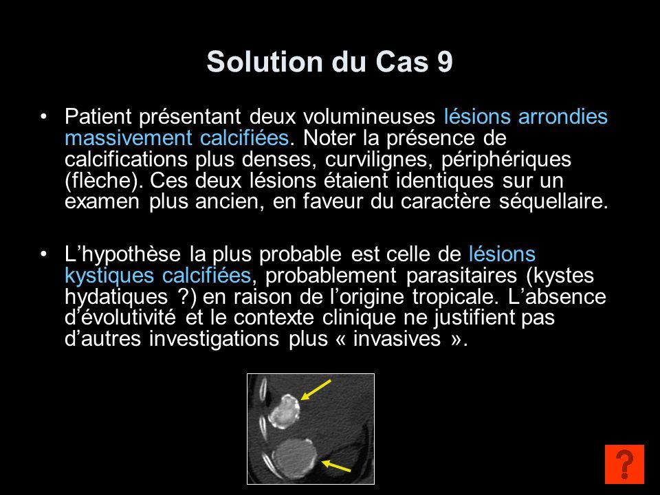 Solution du Cas 9 Patient présentant deux volumineuses lésions arrondies massivement calcifiées. Noter la présence de calcifications plus denses, curv