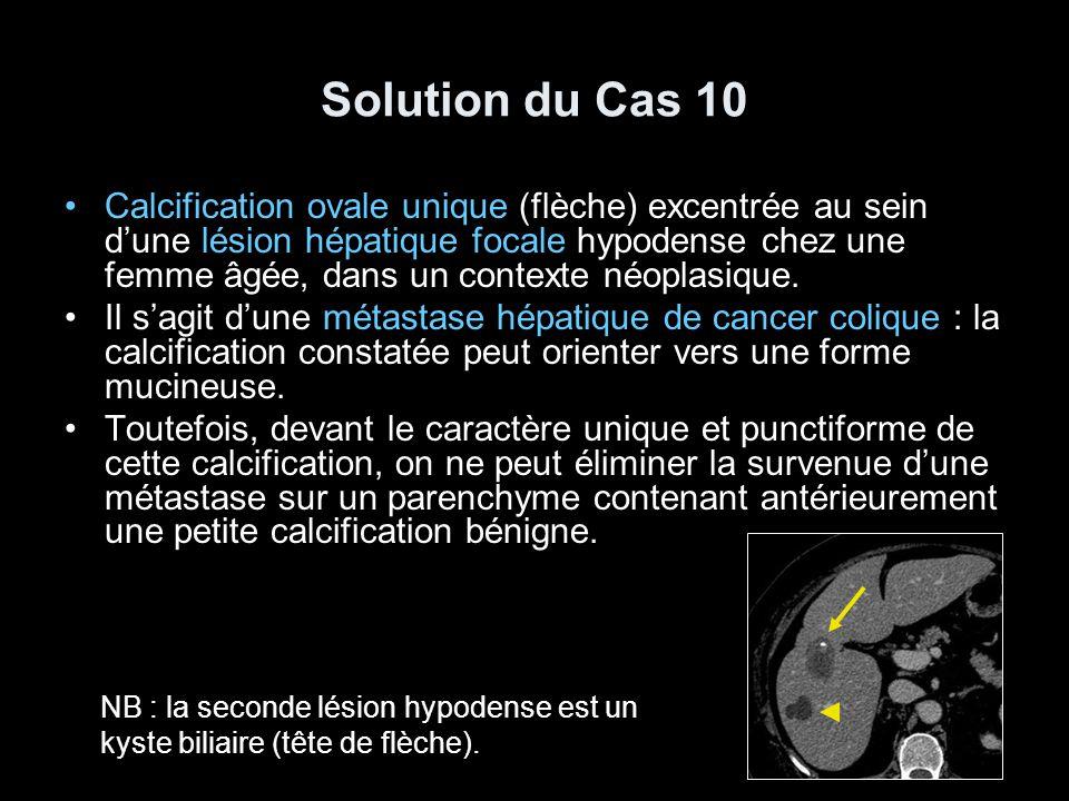 Solution du Cas 10 Calcification ovale unique (flèche) excentrée au sein d'une lésion hépatique focale hypodense chez une femme âgée, dans un contexte