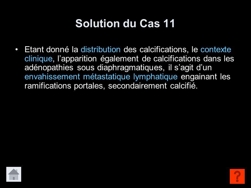 Solution du Cas 11 Etant donné la distribution des calcifications, le contexte clinique, l'apparition également de calcifications dans les adénopathie