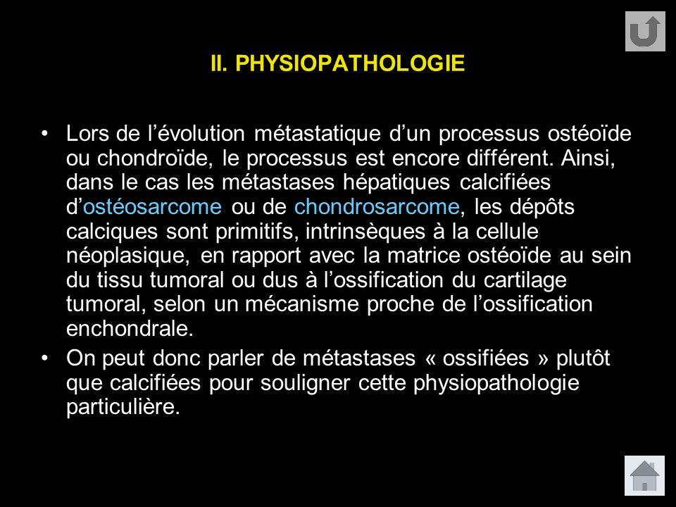 II. PHYSIOPATHOLOGIE Lors de l'évolution métastatique d'un processus ostéoïde ou chondroïde, le processus est encore différent. Ainsi, dans le cas les