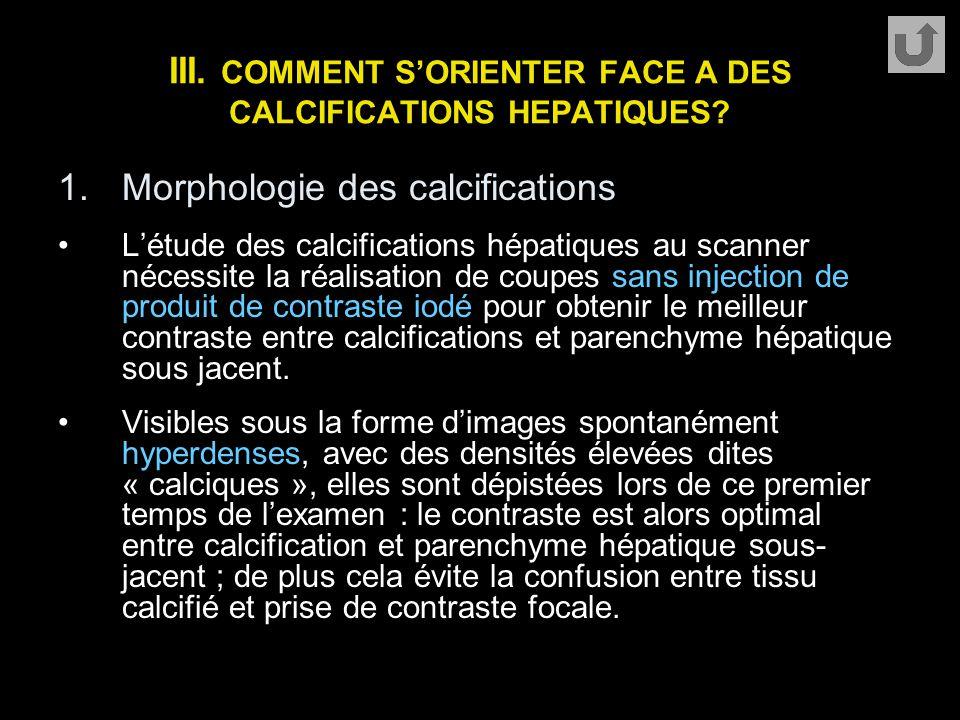 III. COMMENT S'ORIENTER FACE A DES CALCIFICATIONS HEPATIQUES? 1.Morphologie des calcifications L'étude des calcifications hépatiques au scanner nécess