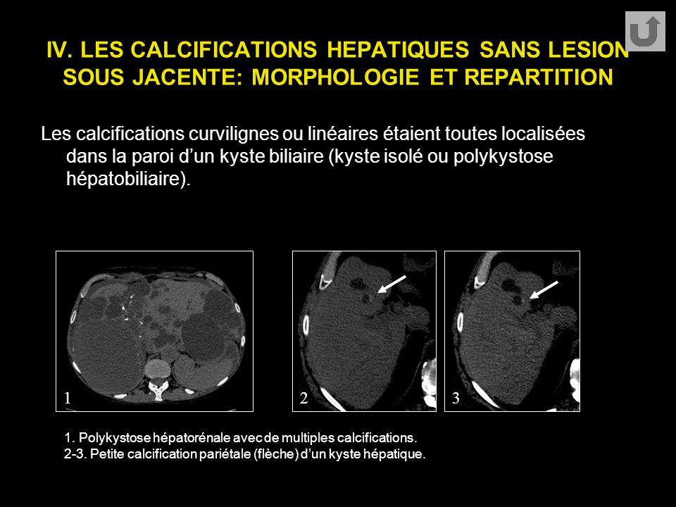 IV. LES CALCIFICATIONS HEPATIQUES SANS LESION SOUS JACENTE: MORPHOLOGIE ET REPARTITION Les calcifications curvilignes ou linéaires étaient toutes loca