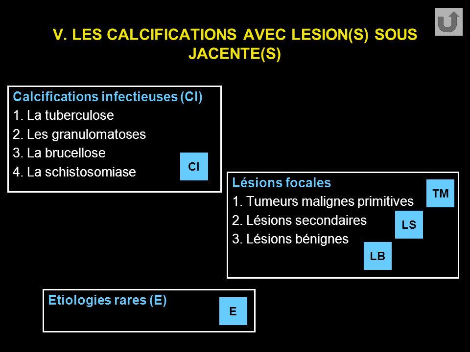 V. LES CALCIFICATIONS AVEC LESION(S) SOUS JACENTE(S) Calcifications infectieuses (CI) 1. La tuberculose 2. Les granulomatoses 3. La brucellose 4. La s