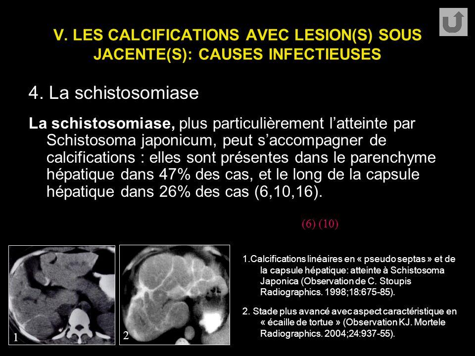 V. LES CALCIFICATIONS AVEC LESION(S) SOUS JACENTE(S): CAUSES INFECTIEUSES 4. La schistosomiase La schistosomiase, plus particulièrement l'atteinte par