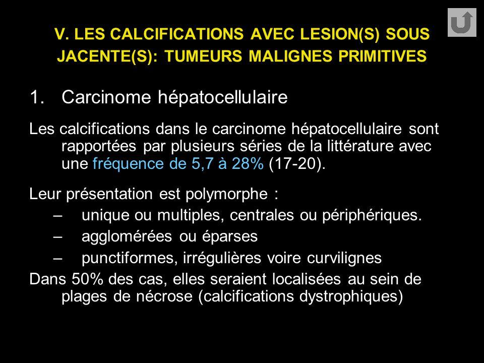 V. LES CALCIFICATIONS AVEC LESION(S) SOUS JACENTE(S): TUMEURS MALIGNES PRIMITIVES 1.Carcinome hépatocellulaire Les calcifications dans le carcinome hé