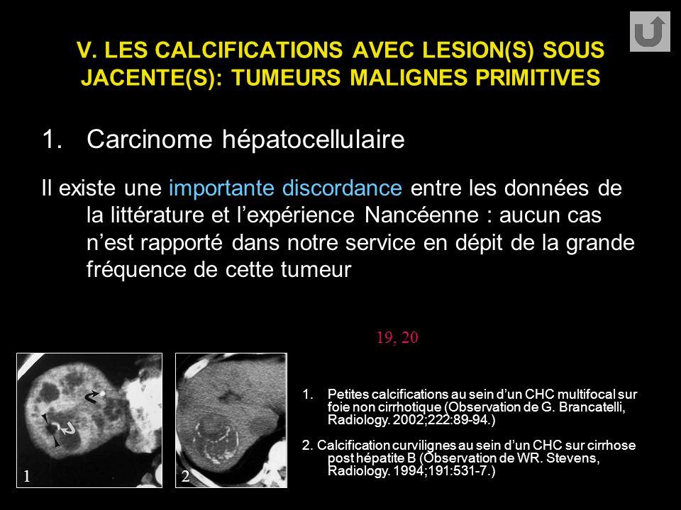 V. LES CALCIFICATIONS AVEC LESION(S) SOUS JACENTE(S): TUMEURS MALIGNES PRIMITIVES 1.Carcinome hépatocellulaire Il existe une importante discordance en