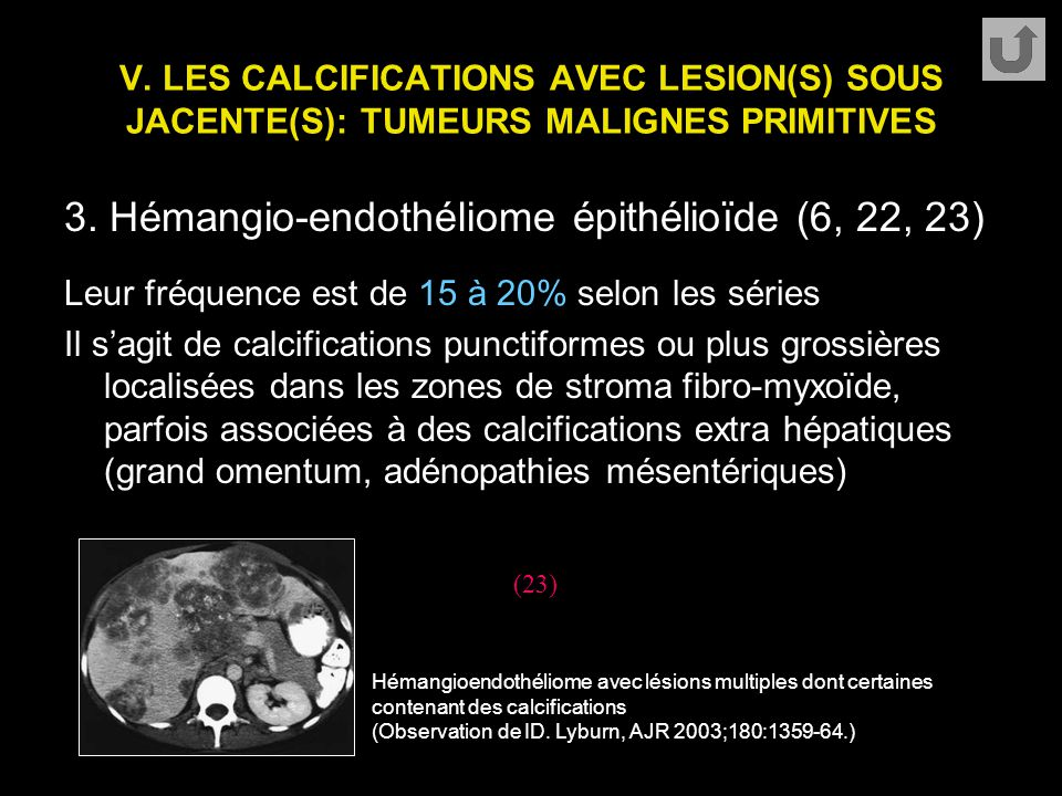 V. LES CALCIFICATIONS AVEC LESION(S) SOUS JACENTE(S): TUMEURS MALIGNES PRIMITIVES 3. Hémangio-endothéliome épithélioïde (6, 22, 23) Leur fréquence est