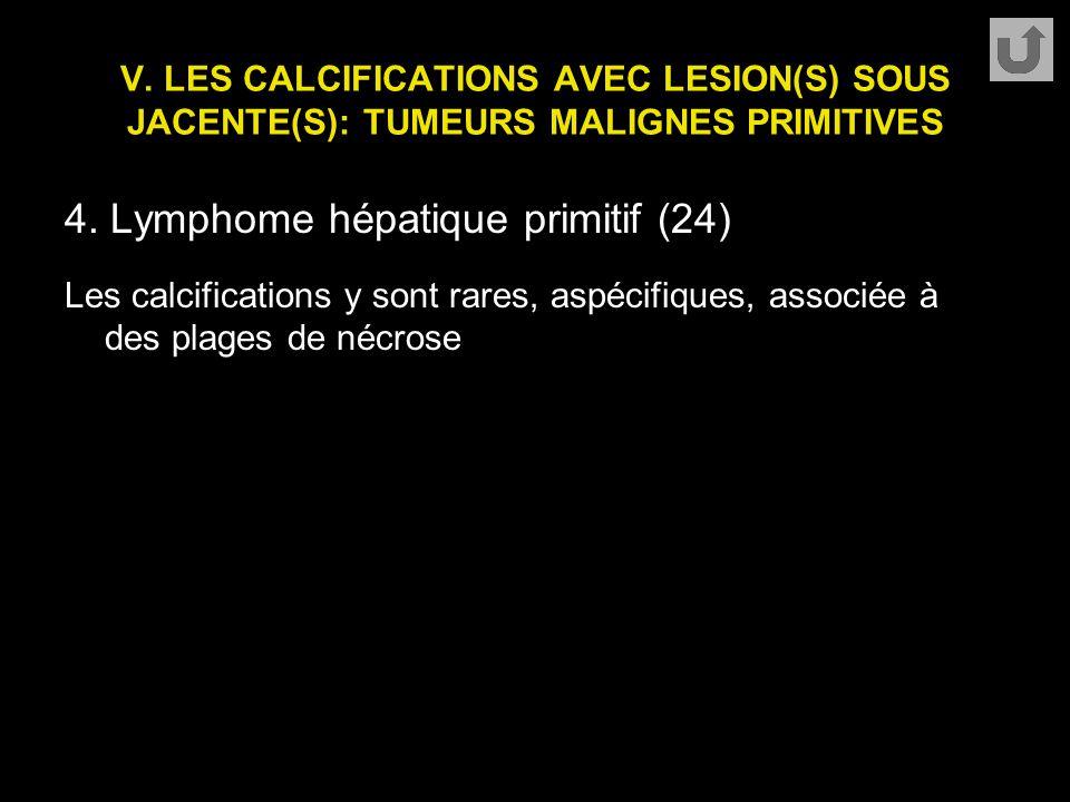V. LES CALCIFICATIONS AVEC LESION(S) SOUS JACENTE(S): TUMEURS MALIGNES PRIMITIVES 4. Lymphome hépatique primitif (24) Les calcifications y sont rares,