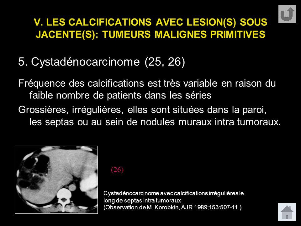 V. LES CALCIFICATIONS AVEC LESION(S) SOUS JACENTE(S): TUMEURS MALIGNES PRIMITIVES 5. Cystadénocarcinome (25, 26) Fréquence des calcifications est très