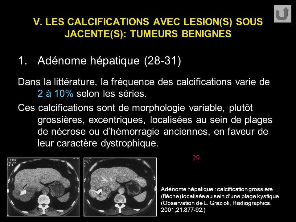 V. LES CALCIFICATIONS AVEC LESION(S) SOUS JACENTE(S): TUMEURS BENIGNES 1.Adénome hépatique (28-31) Dans la littérature, la fréquence des calcification
