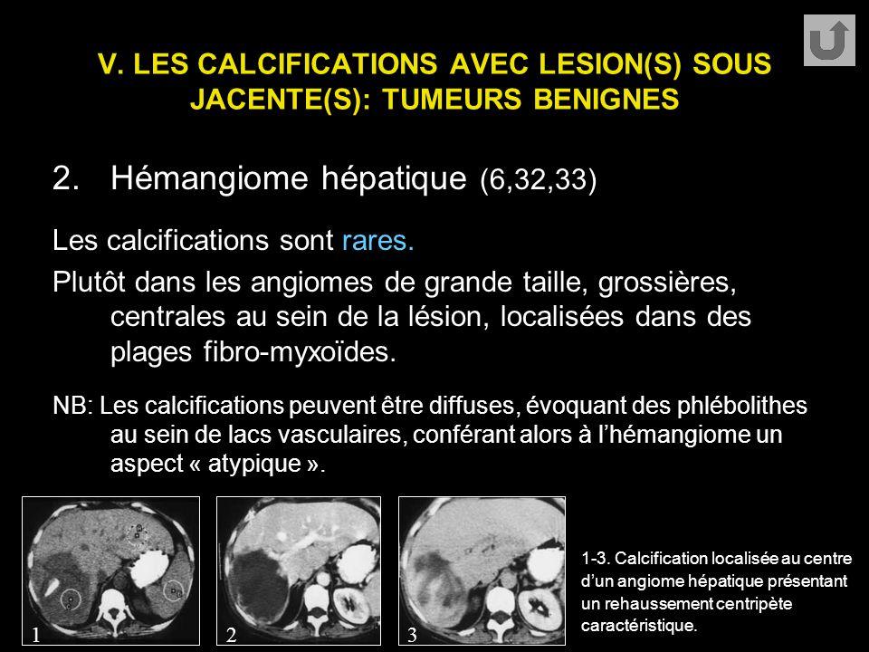 V. LES CALCIFICATIONS AVEC LESION(S) SOUS JACENTE(S): TUMEURS BENIGNES 2.Hémangiome hépatique (6,32,33) Les calcifications sont rares. Plutôt dans les