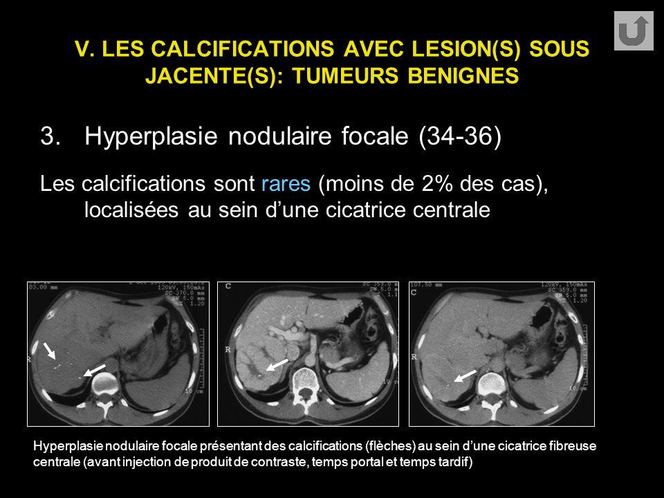 V. LES CALCIFICATIONS AVEC LESION(S) SOUS JACENTE(S): TUMEURS BENIGNES 3.Hyperplasie nodulaire focale (34-36) Les calcifications sont rares (moins de