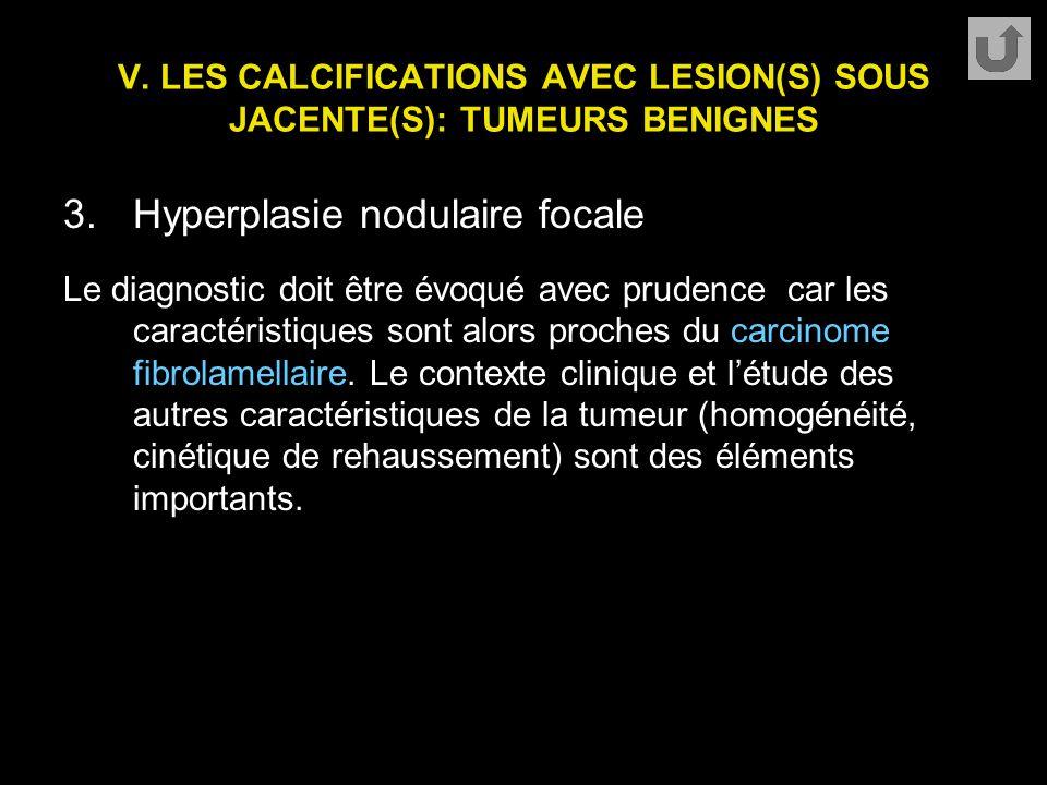 V. LES CALCIFICATIONS AVEC LESION(S) SOUS JACENTE(S): TUMEURS BENIGNES 3.Hyperplasie nodulaire focale Le diagnostic doit être évoqué avec prudence car