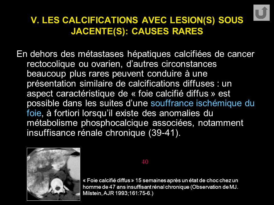 V. LES CALCIFICATIONS AVEC LESION(S) SOUS JACENTE(S): CAUSES RARES En dehors des métastases hépatiques calcifiées de cancer rectocolique ou ovarien, d