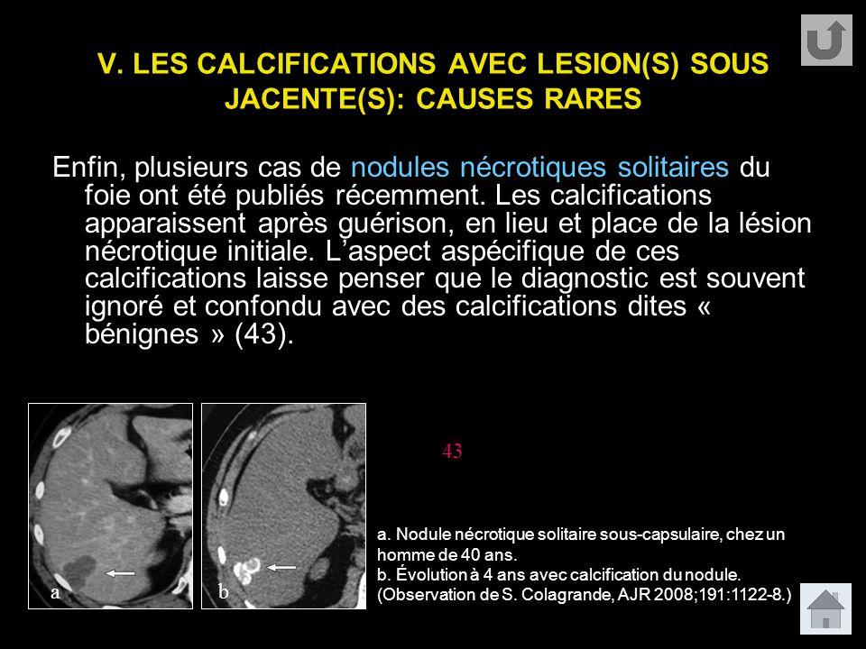 V. LES CALCIFICATIONS AVEC LESION(S) SOUS JACENTE(S): CAUSES RARES Enfin, plusieurs cas de nodules nécrotiques solitaires du foie ont été publiés réce