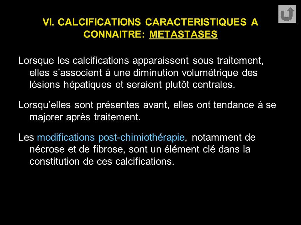 VI. CALCIFICATIONS CARACTERISTIQUES A CONNAITRE: METASTASES Lorsque les calcifications apparaissent sous traitement, elles s'associent à une diminutio