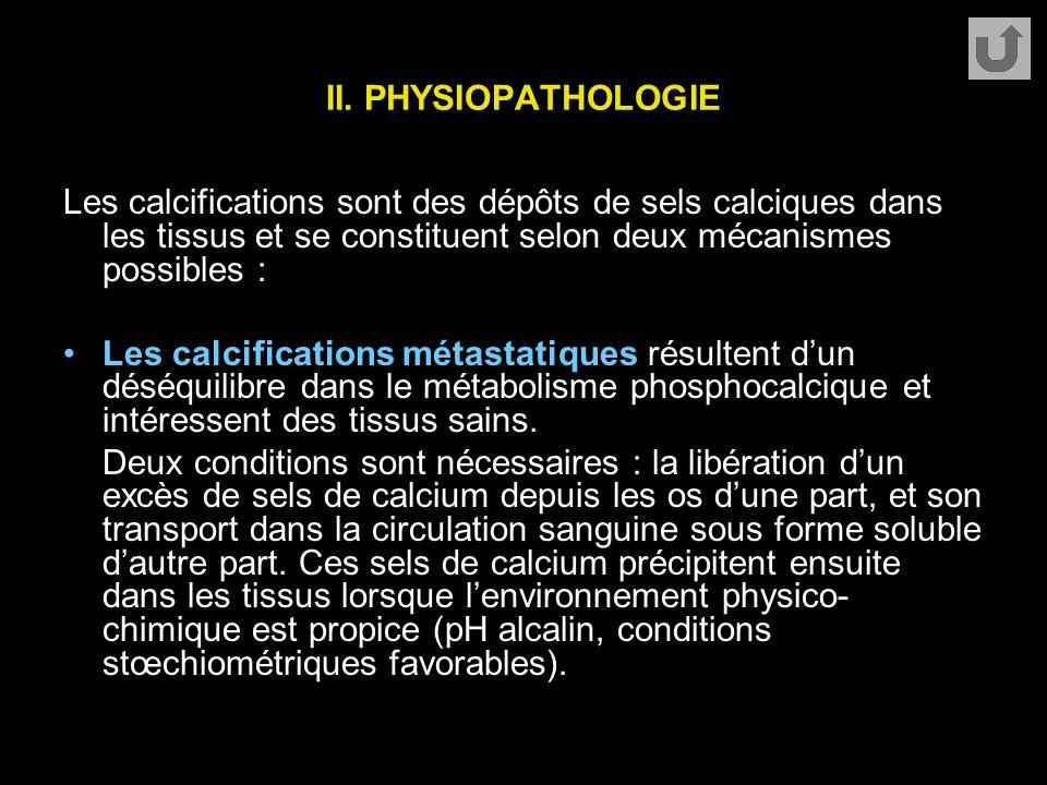 II. PHYSIOPATHOLOGIE Les calcifications sont des dépôts de sels calciques dans les tissus et se constituent selon deux mécanismes possibles : Les calc