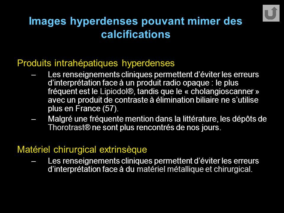 Images hyperdenses pouvant mimer des calcifications Produits intrahépatiques hyperdenses –Les renseignements cliniques permettent d'éviter les erreurs