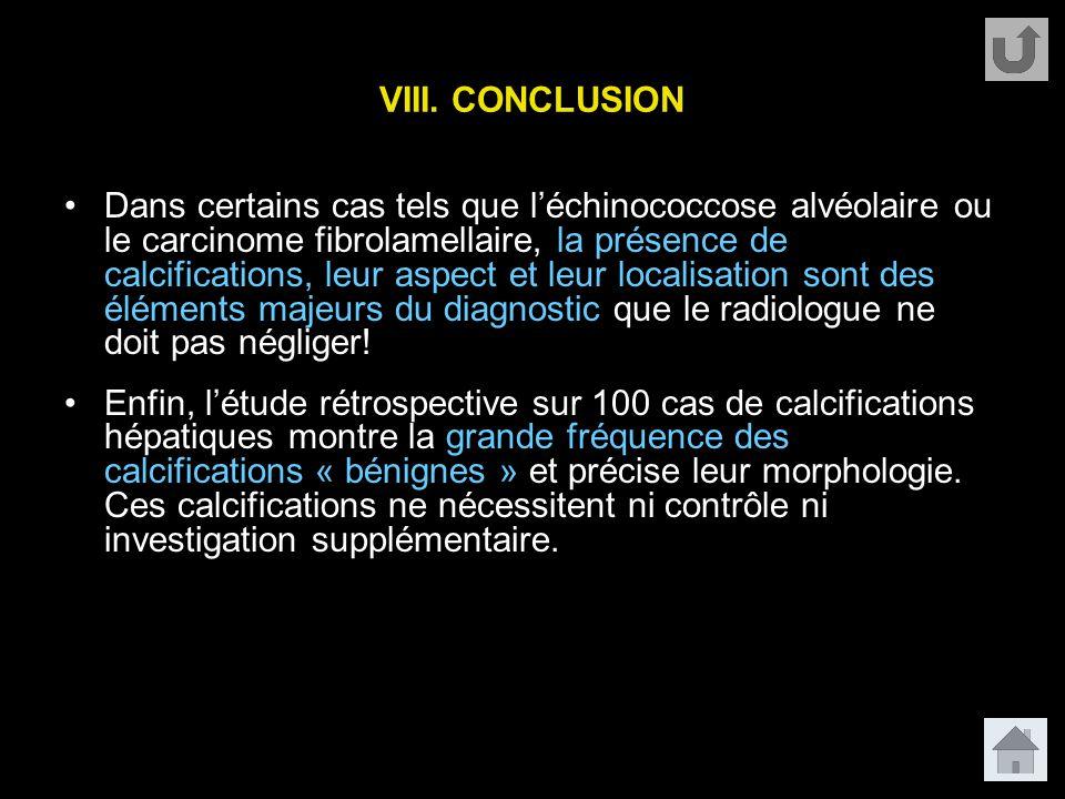 VIII. CONCLUSION Dans certains cas tels que l'échinococcose alvéolaire ou le carcinome fibrolamellaire, la présence de calcifications, leur aspect et
