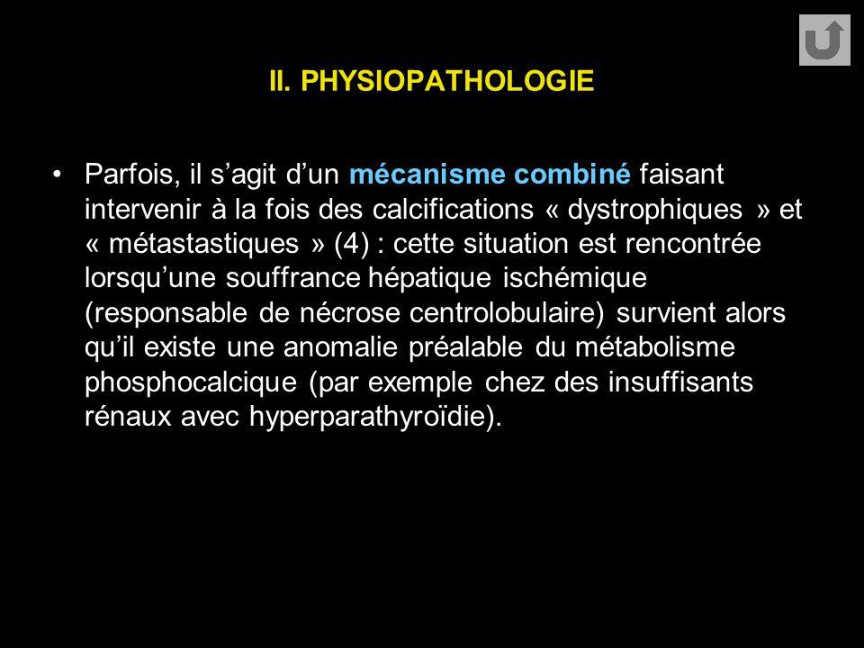 II. PHYSIOPATHOLOGIE Parfois, il s'agit d'un mécanisme combiné faisant intervenir à la fois des calcifications « dystrophiques » et « métastastiques »