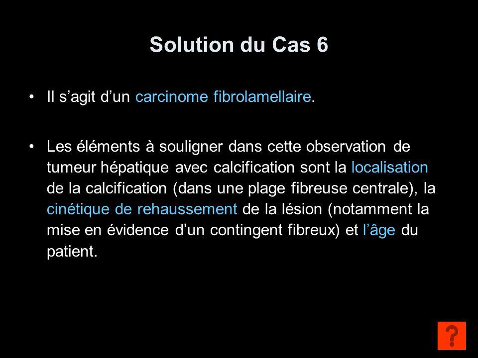 Solution du Cas 6 Il s'agit d'un carcinome fibrolamellaire. Les éléments à souligner dans cette observation de tumeur hépatique avec calcification son