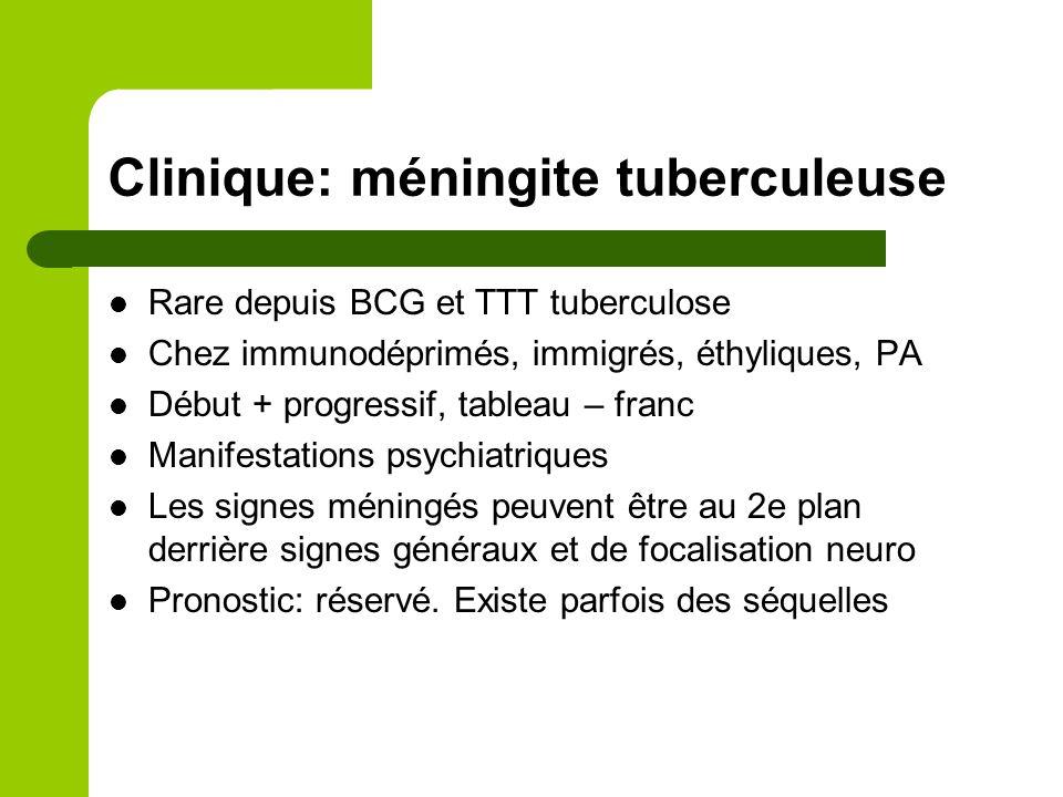 Clinique Méningites lymphocytaires normoglycorachiques de l'adulte et de l'enfant > 5ans - Aiguës (=VIRALES) - Formes subaiguës et chroniques