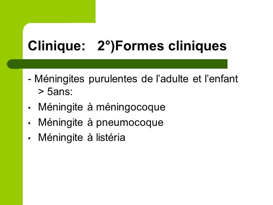 Clinique: méningite à méningocoque Début brutal Signes de focalisation rare Purpura fulminans: signe de gravité +++ Parfois arthralgies Évolution: favorable sous traitement Mortalité 10-15% en cas de purpura fulminans