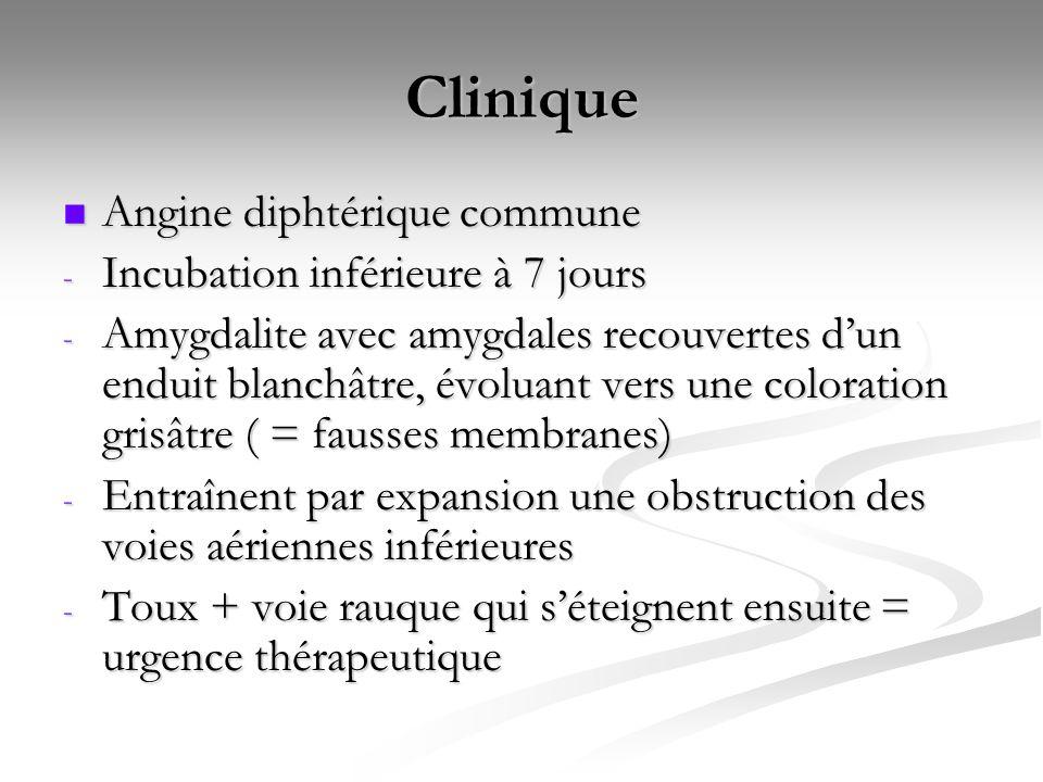 Clinique Angine diphtérique commune Angine diphtérique commune - Incubation inférieure à 7 jours - Amygdalite avec amygdales recouvertes d'un enduit b