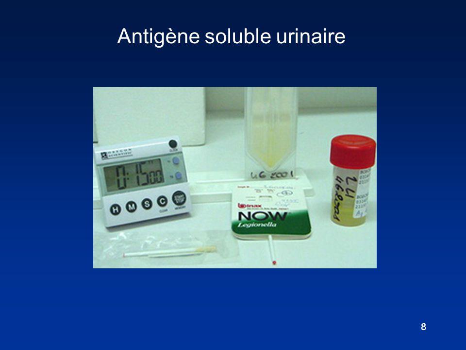 8 Antigène soluble urinaire