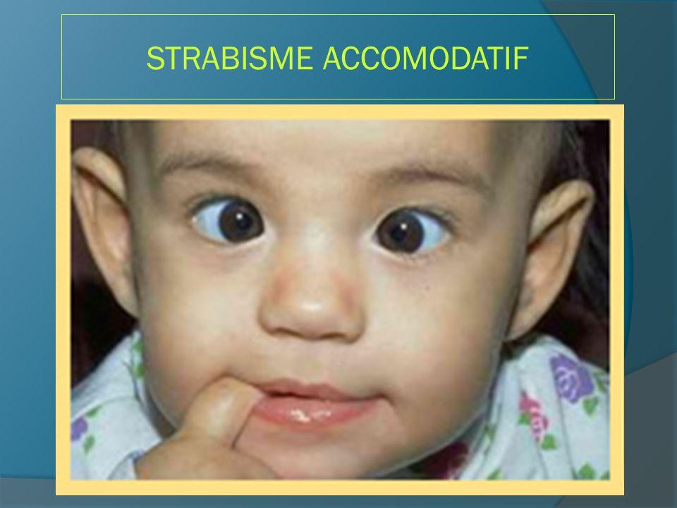 STRABISME ACCOMODATIF