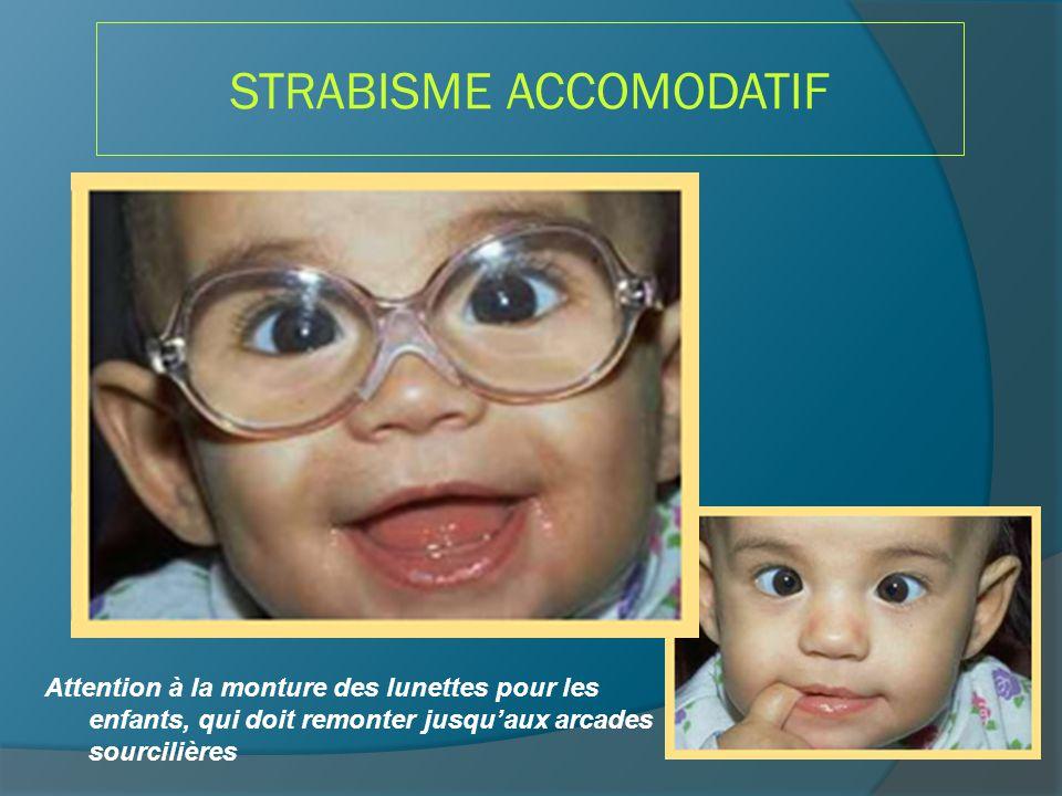 STRABISME ACCOMODATIF Attention à la monture des lunettes pour les enfants, qui doit remonter jusqu'aux arcades sourcilières
