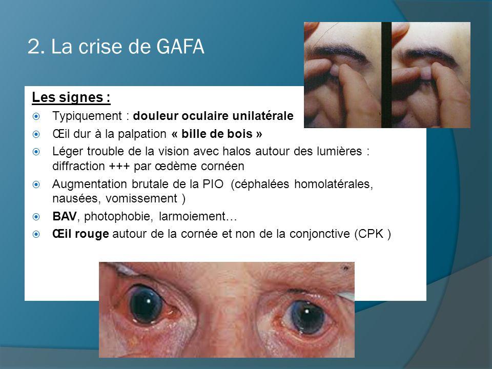 2. La crise de GAFA Les signes :  Typiquement : douleur oculaire unilatérale  Œil dur à la palpation « bille de bois »  Léger trouble de la vision