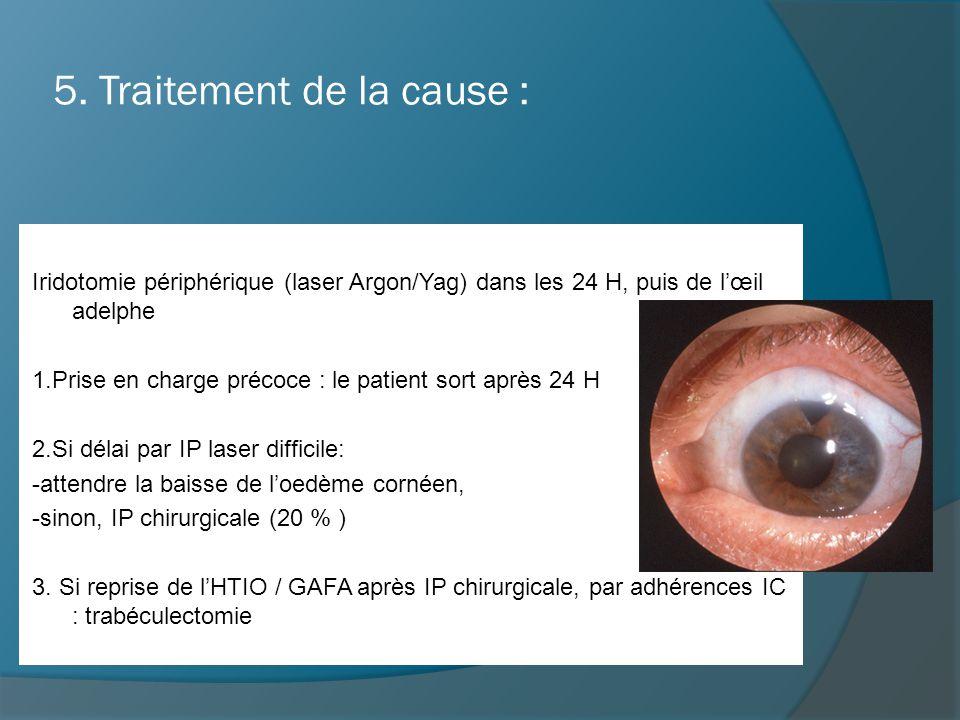 5. Traitement de la cause : Iridotomie périphérique (laser Argon/Yag) dans les 24 H, puis de l'œil adelphe 1.Prise en charge précoce : le patient sort