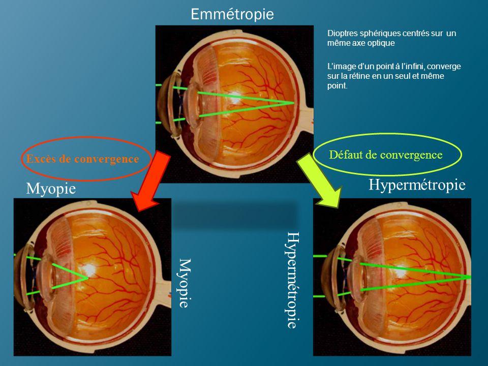 HYPERMETROPIE Anomalie de réfraction L'œil au repos n'est pas assez CONVERGENT, et l'image d'un point éloigné (à l'infini) se projette en arrière de la rétine.