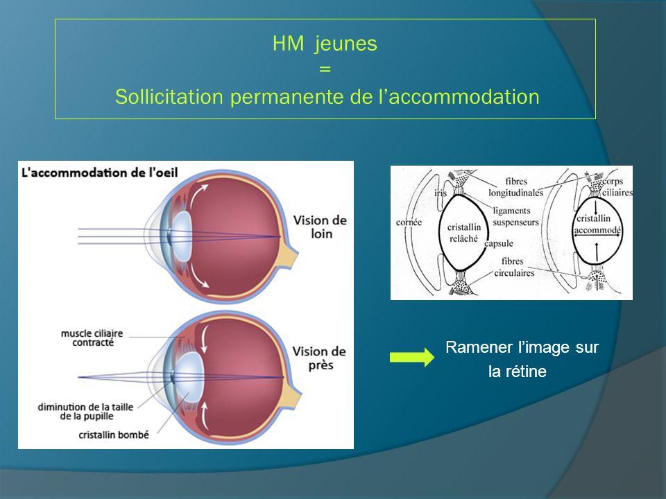HM jeunes = Sollicitation permanente de l'accommodation Gêne visuelle perçue que quand l'amplitude d'accommodation diminue (presbytie + précoce) et/ou hypermétropie trop forte et/ou effort en VP trop prolongé (études supérieures++++) ASTHENOPIE : Syndrome sec (rougeur et blépharite) Céphalées frontales Fatigue visuelle fluctuant au cours de la journée Douleur oculaire Diplopie transitoire, voire TOM
