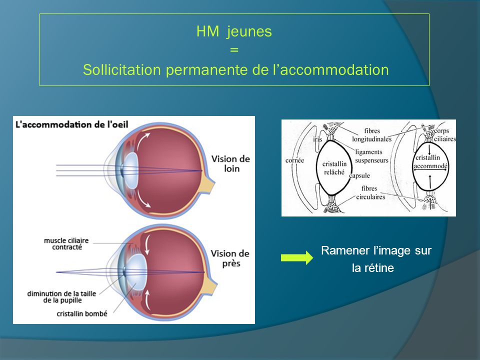GAFA = GLAUCOME AIGÜ PAR FERMETURE DE L'ANGLE 1.Principe 2.