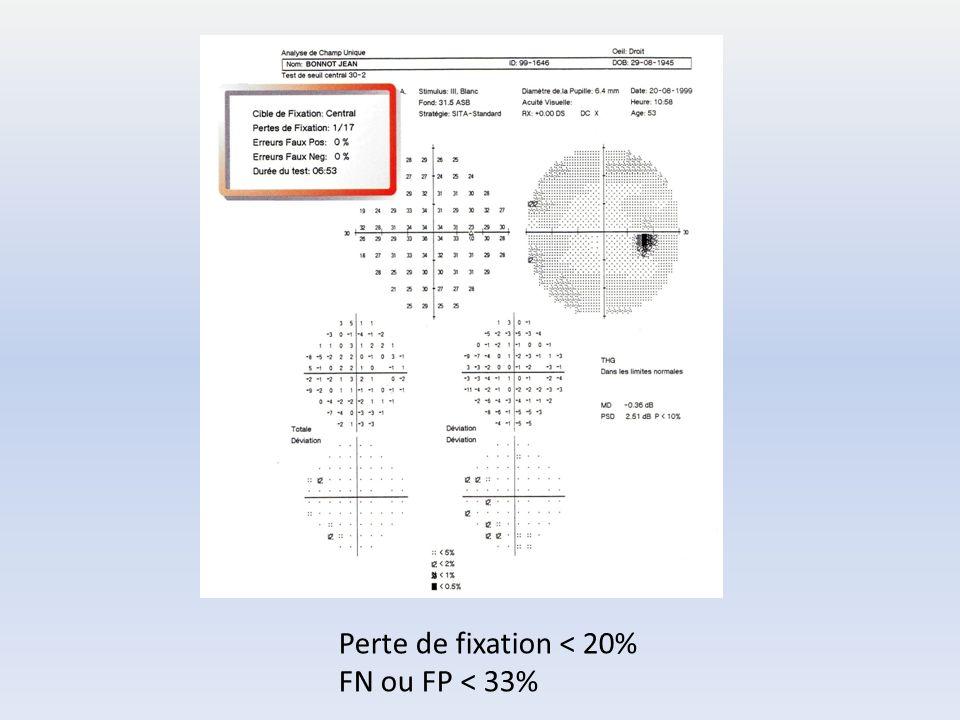 Perte de fixation < 20% FN ou FP < 33%