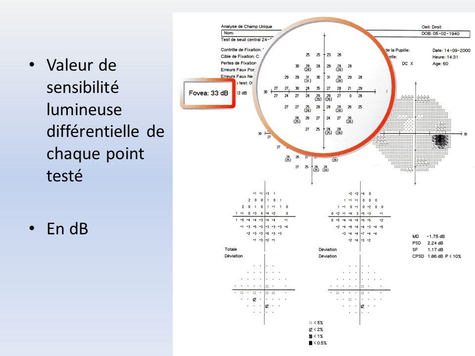 Valeur de sensibilité lumineuse différentielle de chaque point testé En dB