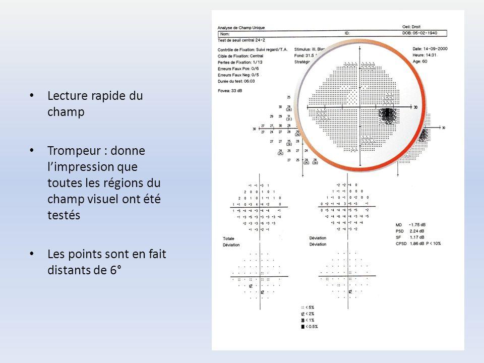 Lecture rapide du champ Trompeur : donne l'impression que toutes les régions du champ visuel ont été testés Les points sont en fait distants de 6°