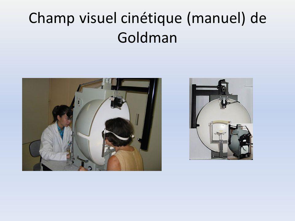 Champ visuel cinétique (manuel) de Goldman
