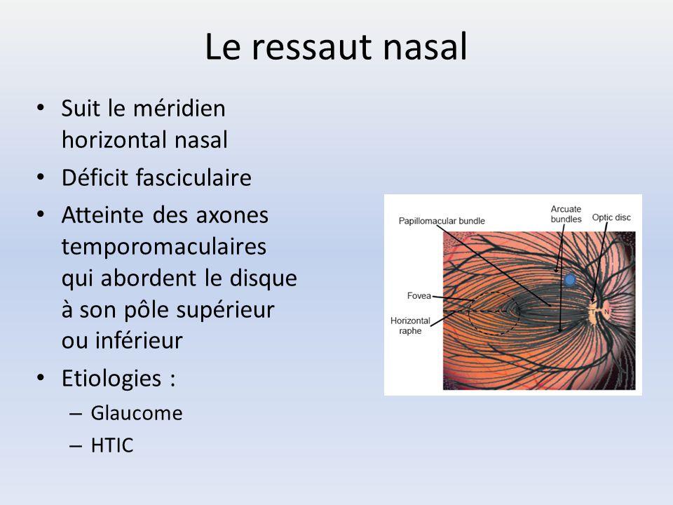 Le ressaut nasal Suit le méridien horizontal nasal Déficit fasciculaire Atteinte des axones temporomaculaires qui abordent le disque à son pôle supéri