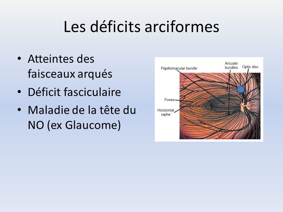 Les déficits arciformes Atteintes des faisceaux arqués Déficit fasciculaire Maladie de la tête du NO (ex Glaucome)