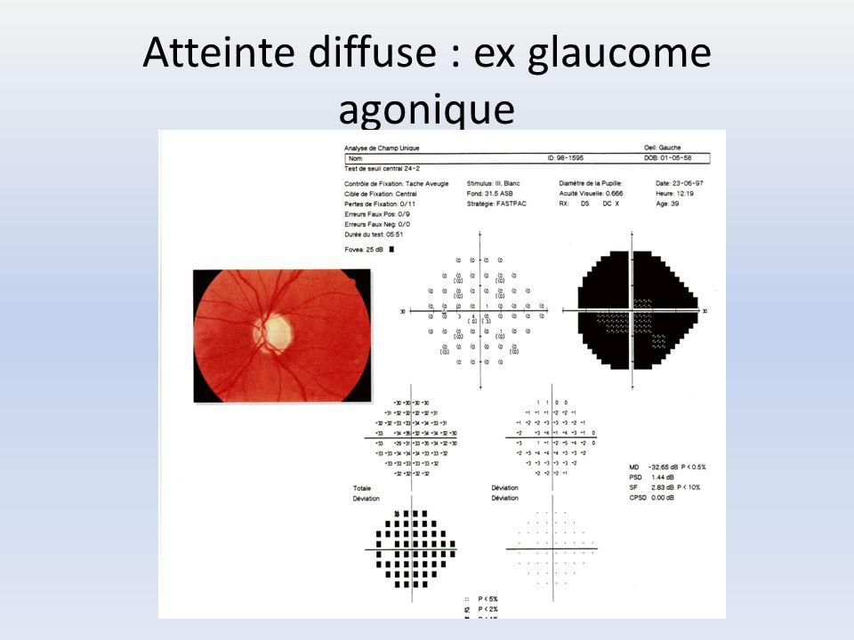 Atteinte diffuse : ex glaucome agonique