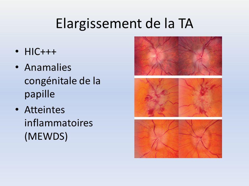 Elargissement de la TA HIC+++ Anamalies congénitale de la papille Atteintes inflammatoires (MEWDS)