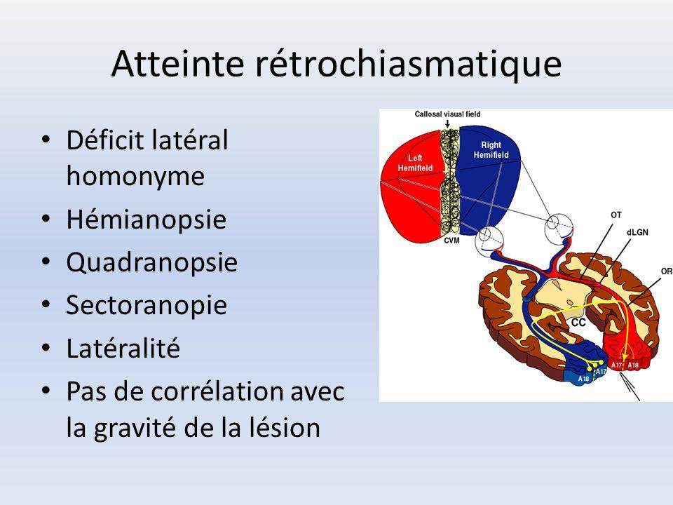 Atteinte rétrochiasmatique Déficit latéral homonyme Hémianopsie Quadranopsie Sectoranopie Latéralité Pas de corrélation avec la gravité de la lésion