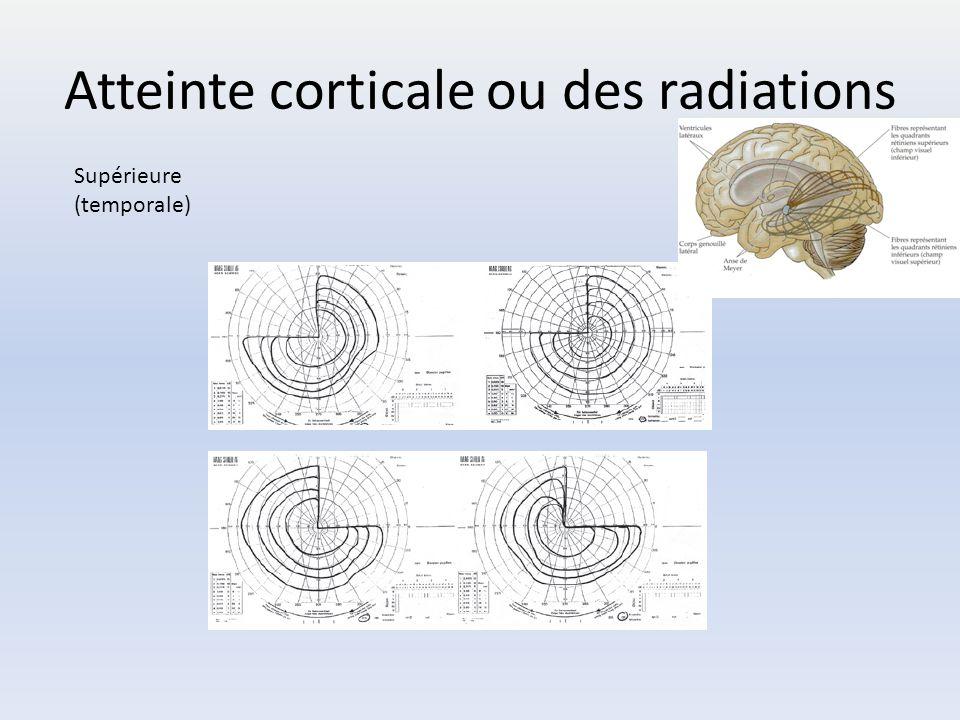 Atteinte corticale ou des radiations Supérieure (temporale)