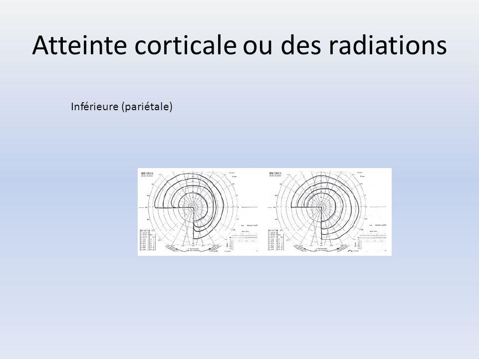 Atteinte corticale ou des radiations Inférieure (pariétale)