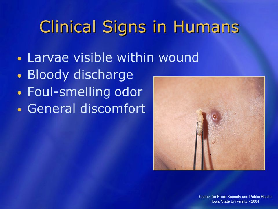 Center for Food Security and Public Health Iowa State University - 2004 Clinical Signs in Humans Larvae visible within wound Bloody discharge Foul-smelling odor General discomfort