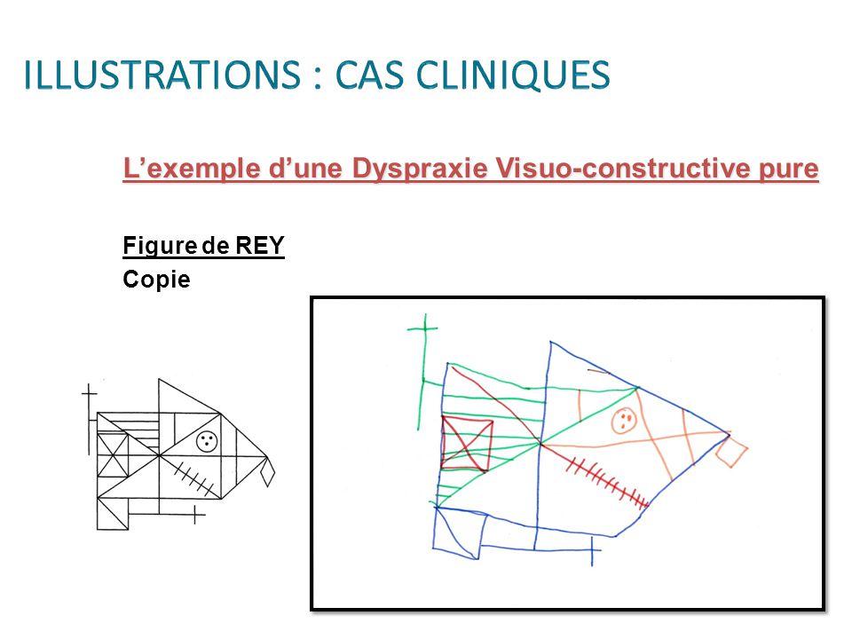 L'exemple d'une Dyspraxie Visuo-constructive pure Figure de REY Copie