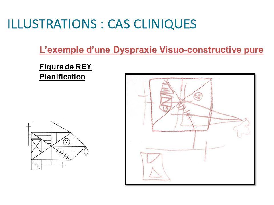 L'exemple d'une Dyspraxie Visuo-constructive pure Figure de REY Planification